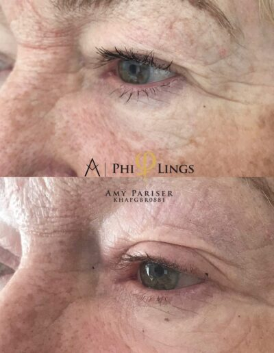 Before and After Eyelids Phi-ion Plasma Pen Skin Tightening