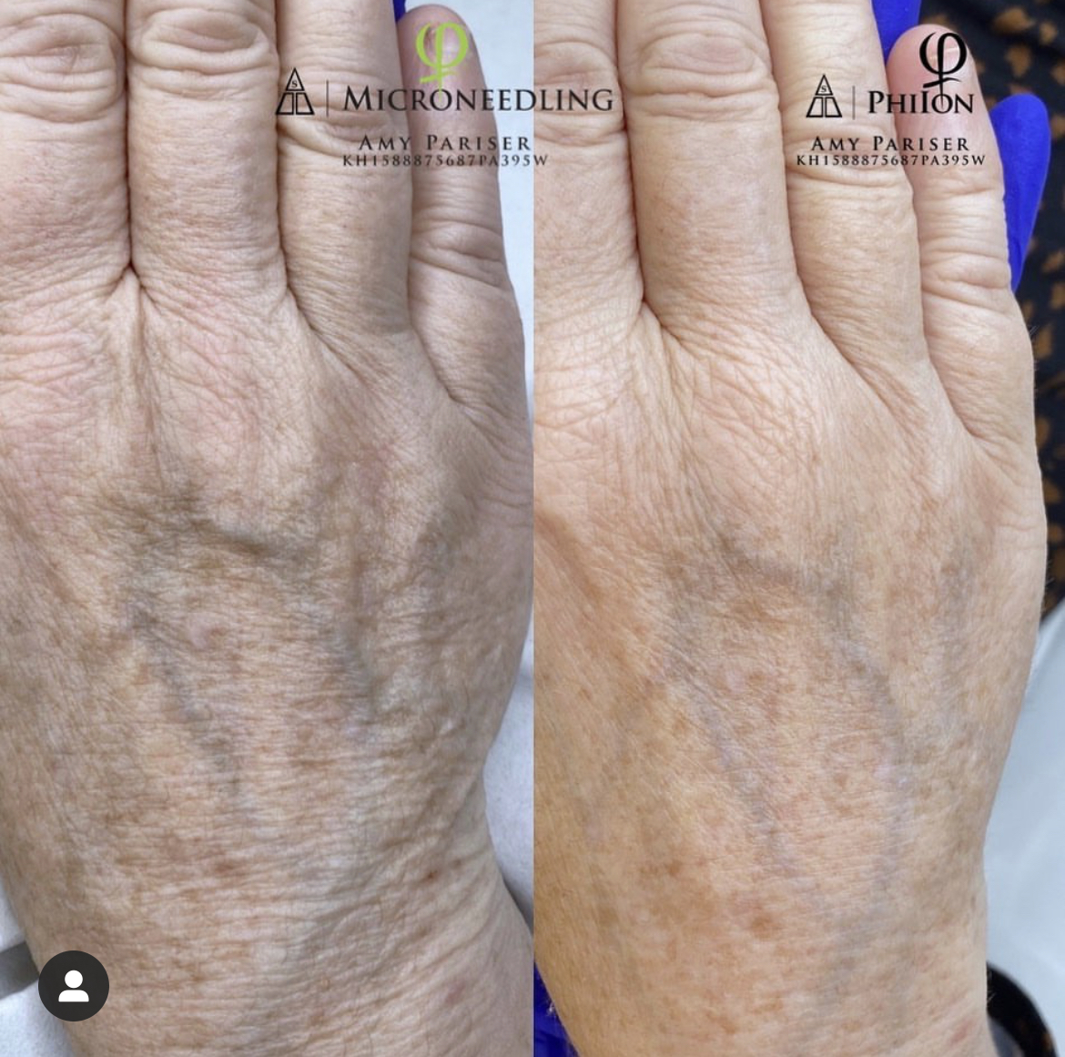 Microneedling Stomach Before and After by iBrowink Boutique