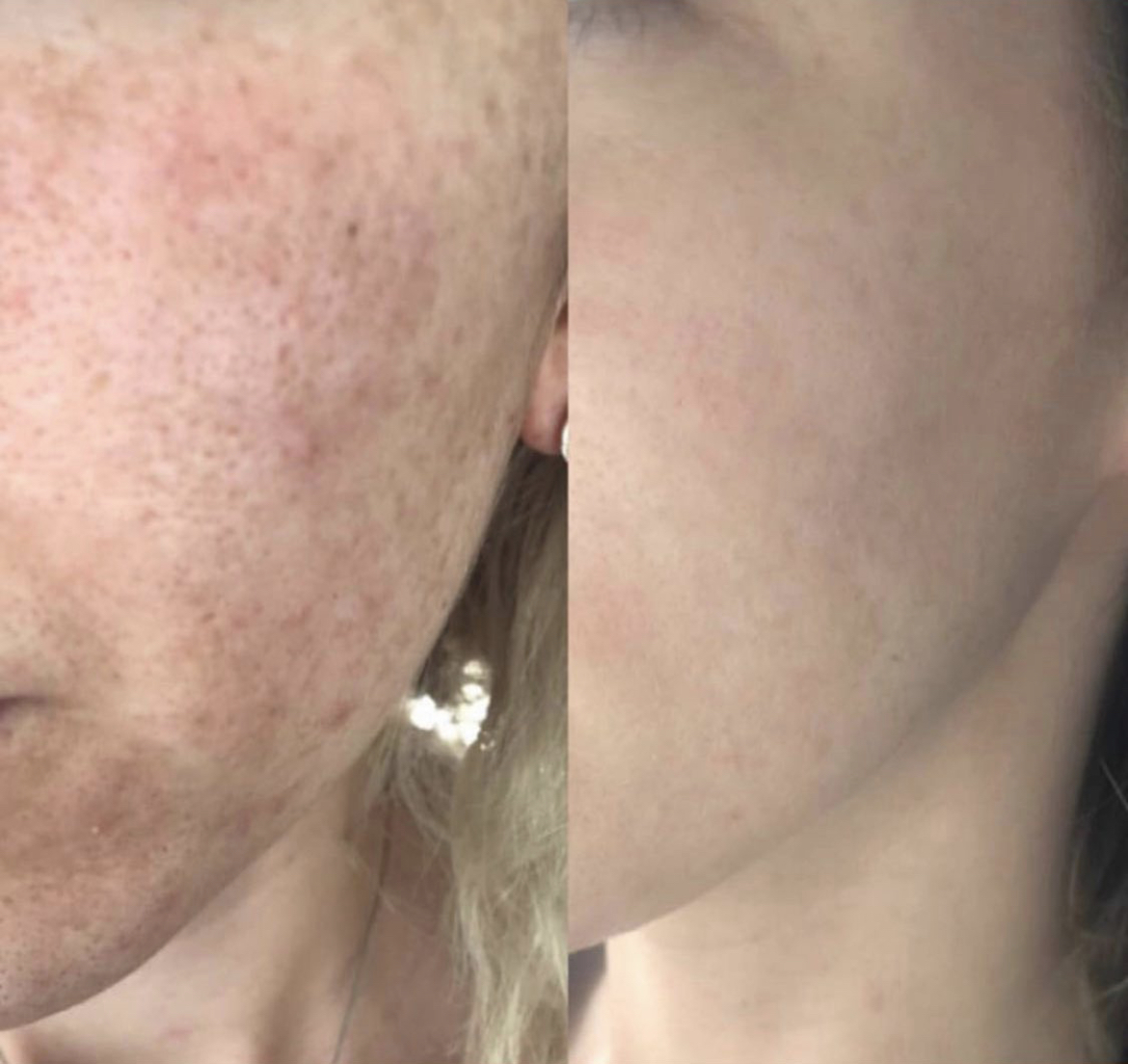 Microneedling Before and After by iBrowink Boutique