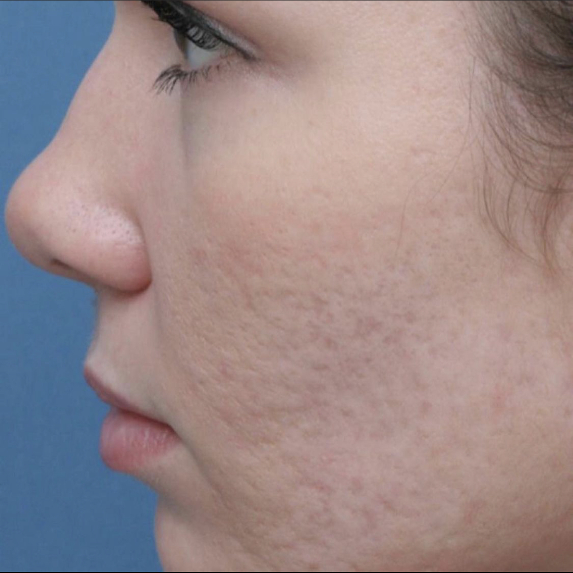 Microneedling After by iBrowink Boutique