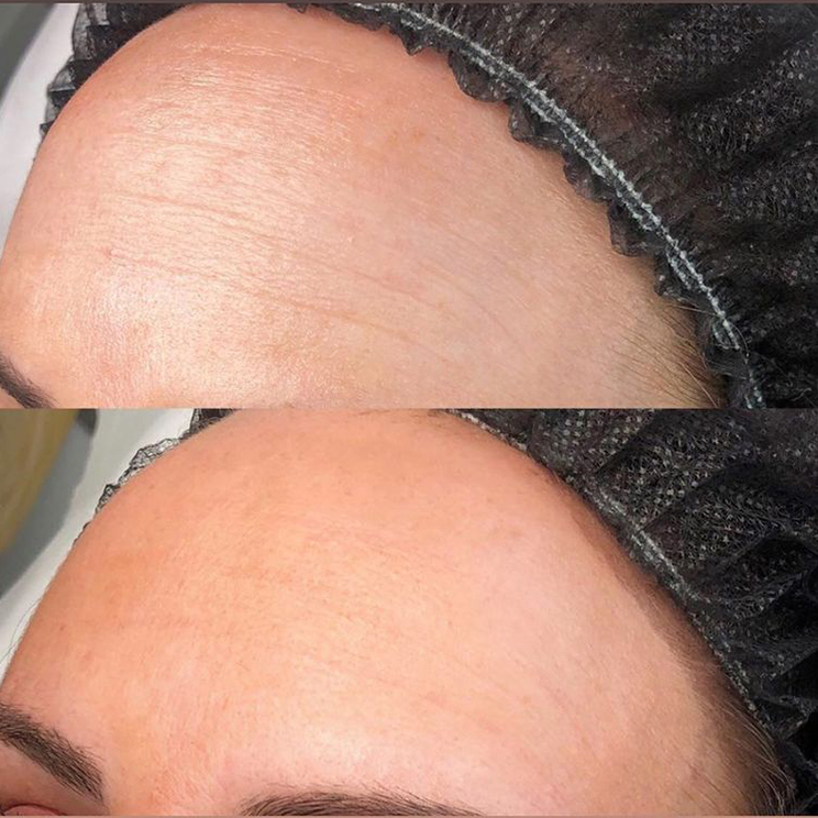 Plasma Pen Forehead before and after pic