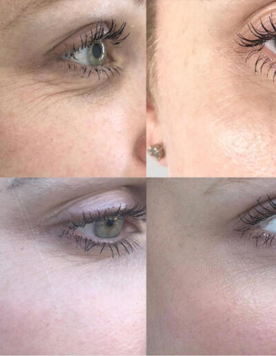 Crows feet plasma pen before and after pic