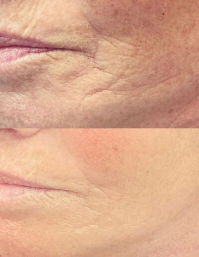 Smile line plasma pen before and after pic