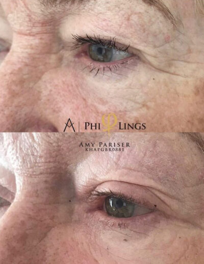 Eye socket plasma pen before and after