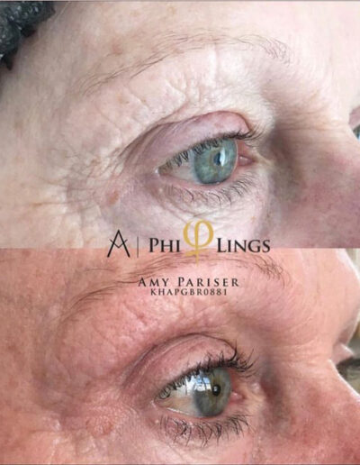 Eyelid plasma pen before and after